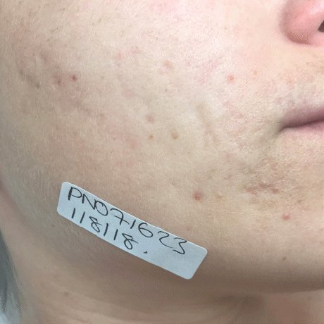 Acne Scarring After