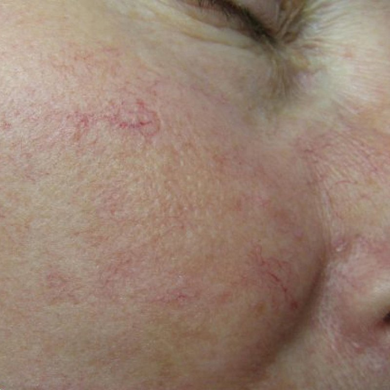 After IPL Treatment - Face Aesthetic Clinic