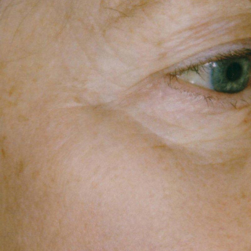 Pigmentation IPL Treatment - Face Aesthetic Clinic