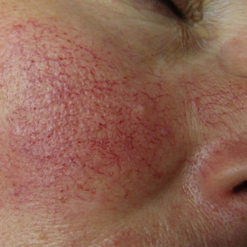 Before IPL Treatment - Face Aesthetic Clinic