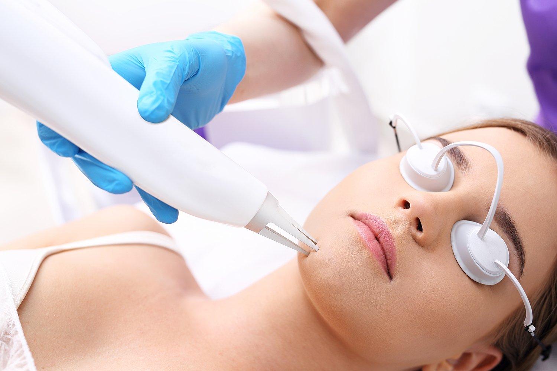 Laser Resurfacing - Face Aesthetic Clinic